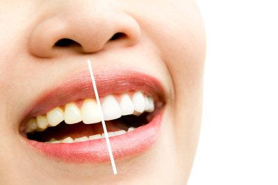 teeth - whitening
